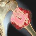 Upper Arm Tumour, X-ray by Cnri