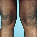 View Of Knees Affected By Osteoarthritis by