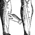 William Harvey Woodcut Showing Venous Valves by .