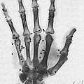 X-ray Of A Hand With Buckshot by Photo Researchers