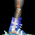 X-ray Of Broken Bones In Ski Boot by Ted Kinsman