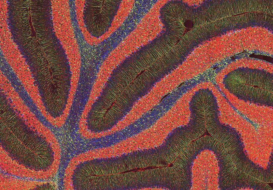 Purkinje Cell Photograph - Cerebellum Structure, Light Micrograph by Thomas Deerinck, Ncmir