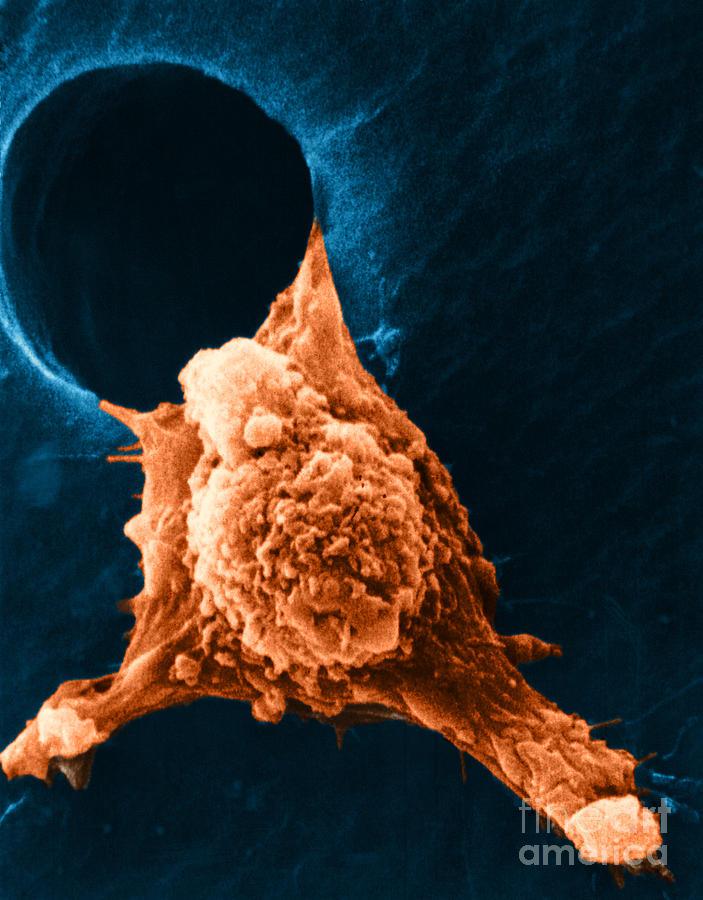 Sem Photograph - Metastasis by Science Source