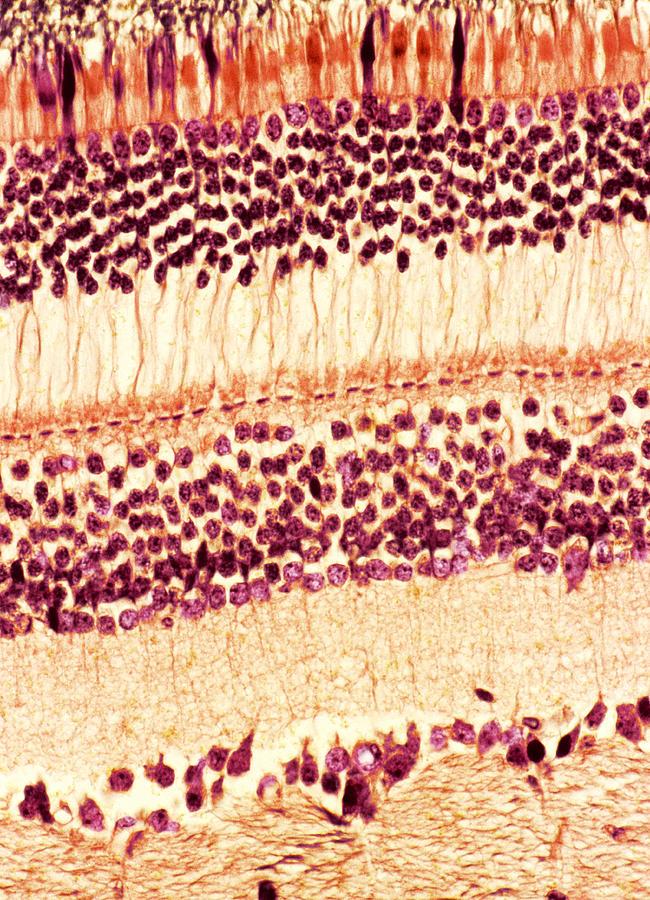 Retina Photograph - Retina, Light Micrograph by Steve Gschmeissner