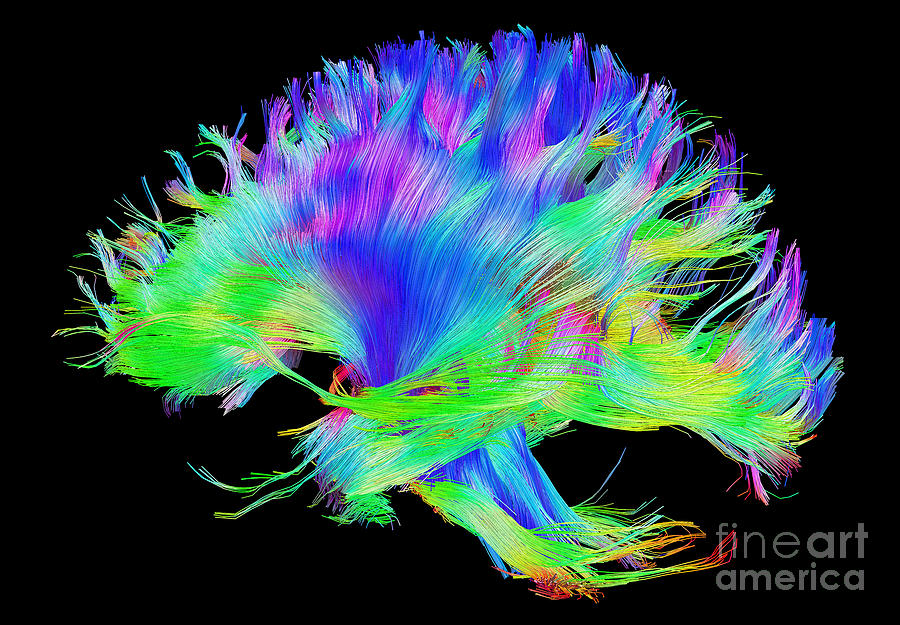 Brain Mri Photograph - Fiber Tracts Of The Brain, Dti 2 by Living Art Enterprises