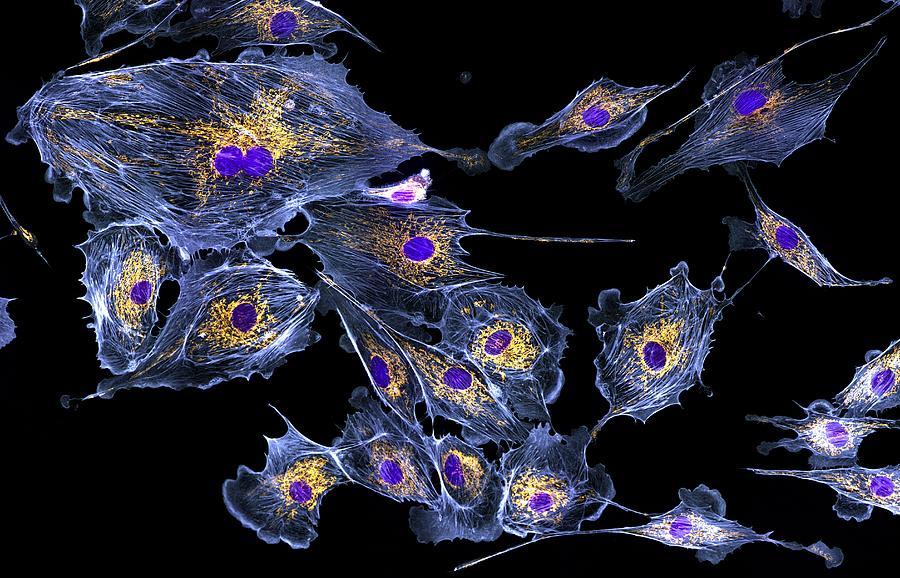 Biological Photograph - Lung Cells, Fluorescent Micrograph by Dr Torsten Wittmann