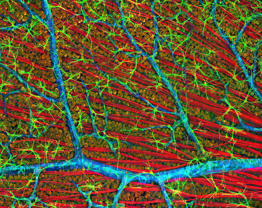 Nerve Cell Photograph - Retina Blood Vessels And Nerve Cells by Thomas Deerinck, Ncmir