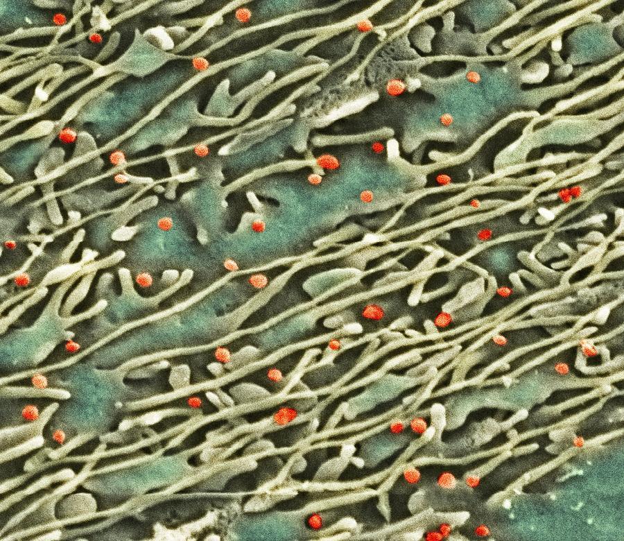 Hepatitis C Photograph - Hepatitis C Viruses, Tem by Thomas Deerinck, Ncmir