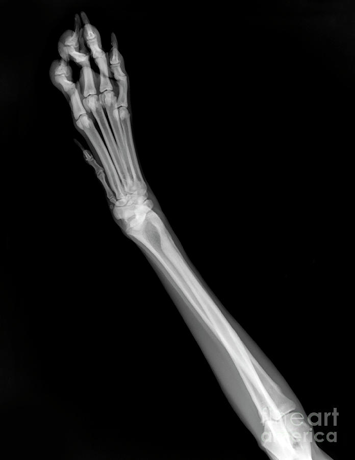 Dog Photograph - X-ray Of A Dogs Front Left Leg by Yael Rosen