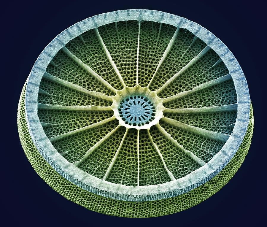 Arachnoidiscus Sp. Photograph - Diatom, Sem by Steve Gschmeissner