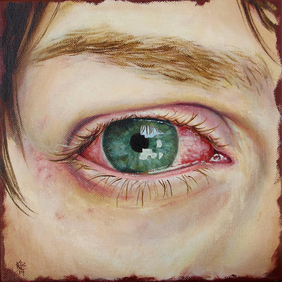 Red Eyes Painting - Allergic Reaction To Allergy Drops by Kirsten Beitler