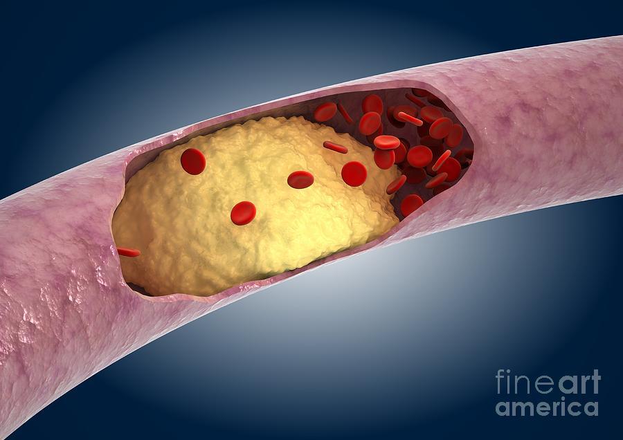 Реферат по теме диета при атеросклерозе
