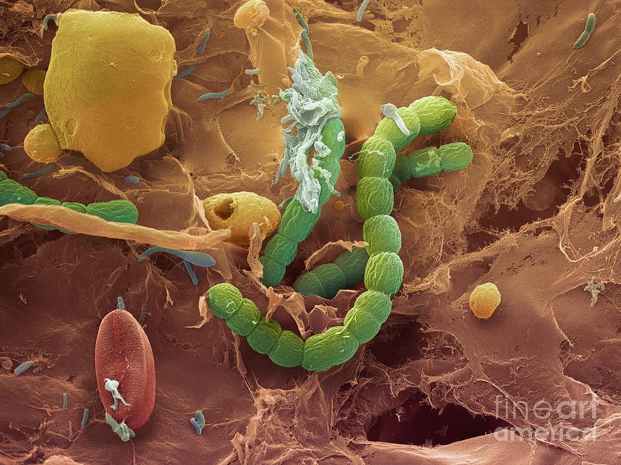 Бактерии при бактериальном простатите лекарства от простатита харьков
