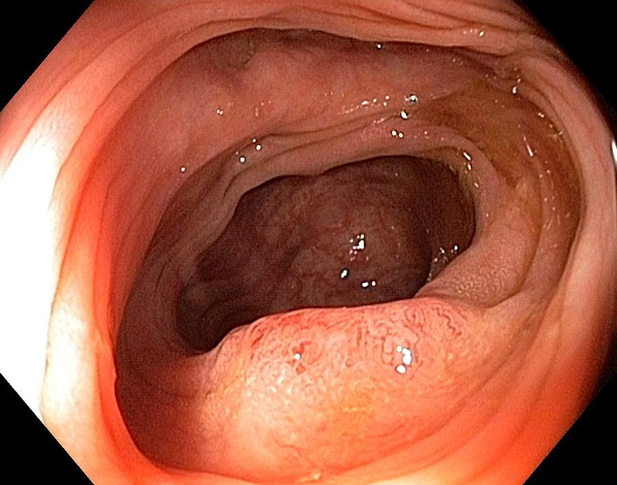 Endoscopic View Photograph - Cancer Of The Colon by Gastrolab
