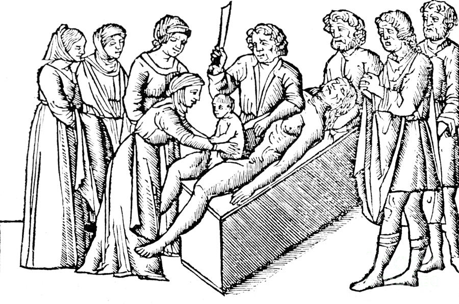 Medical Photograph - Cesarean Section 16th Century by Science Source