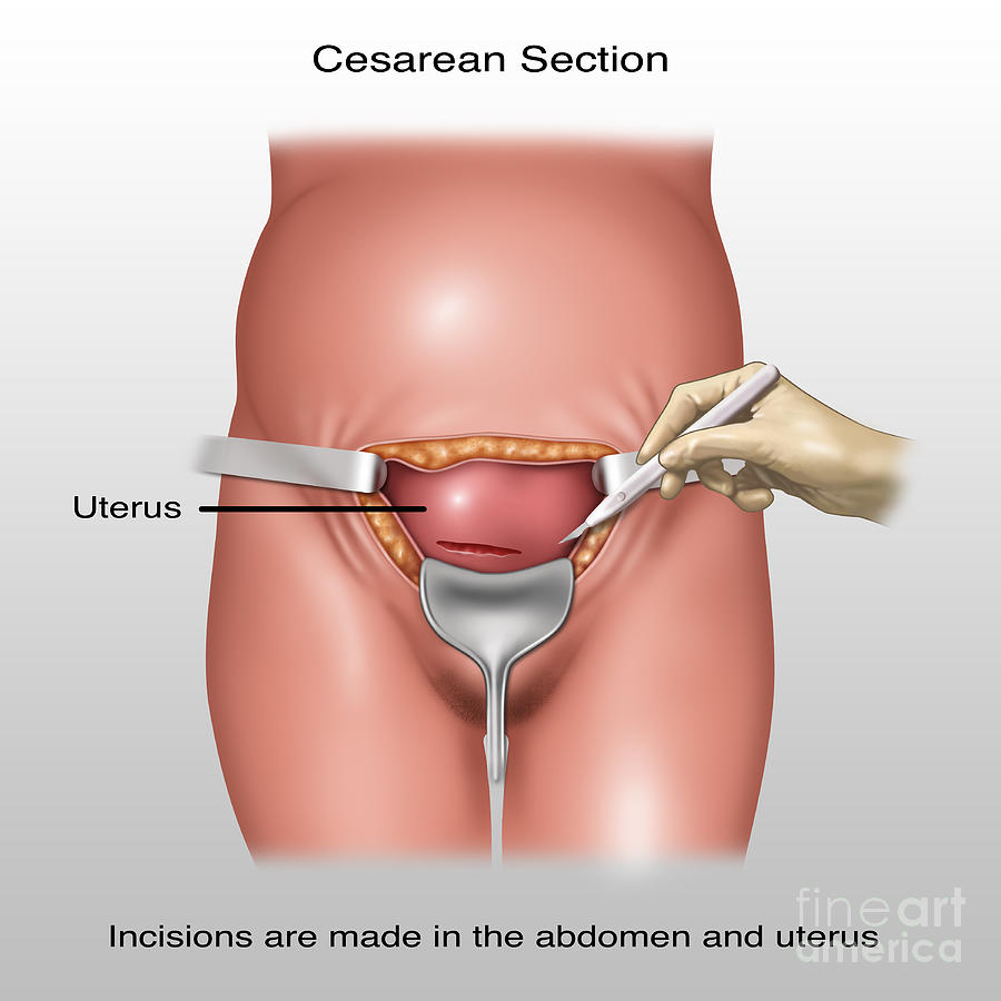 Cesarean Section Incisions, Illustration Photograph by Gwen Shockey