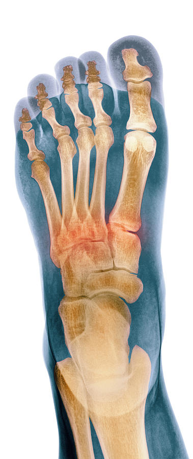 Crushed Broken Foot Photograph - Crushed Broken Foot, X-ray by