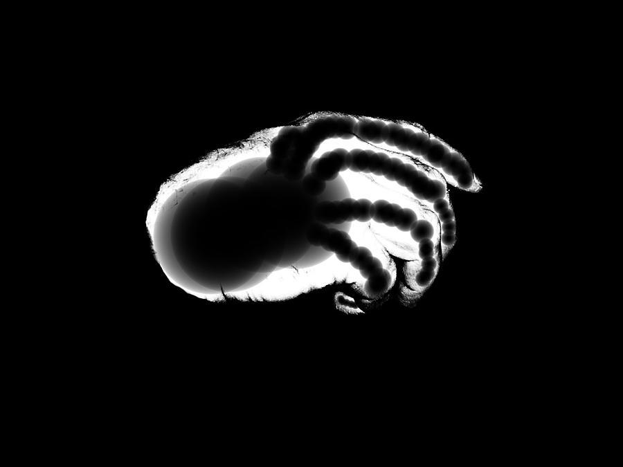 X Ray Photograph - Digital Free Hand by Tony Murray