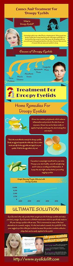 Droopy Eyelids - Causes And Treatment by Alice Jolly