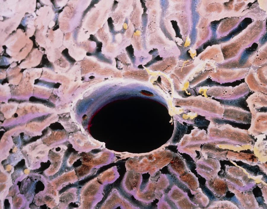 Liver Anatomy Photograph - False-colour Sem Of A Lobule Of The Liver by Prof. P. Mottadept. Of Anatomyuniversity \la Sapienza\, Rome