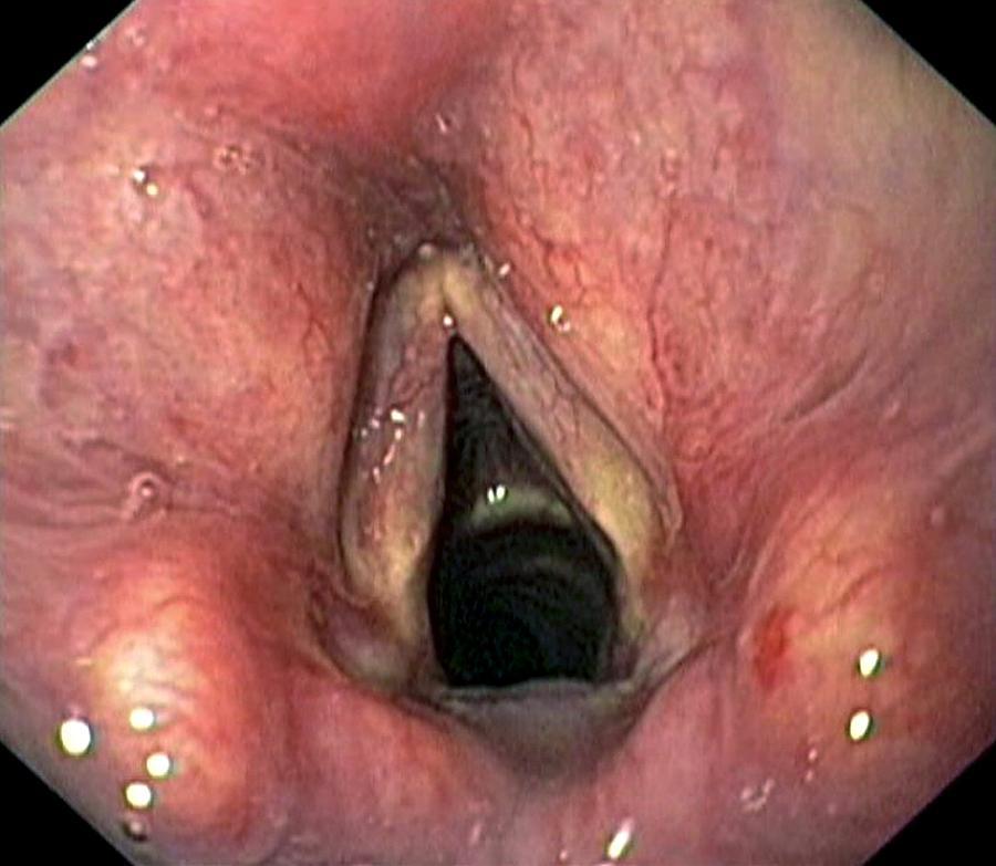 Larynx Photograph - Healthy Larynx by Gastrolab