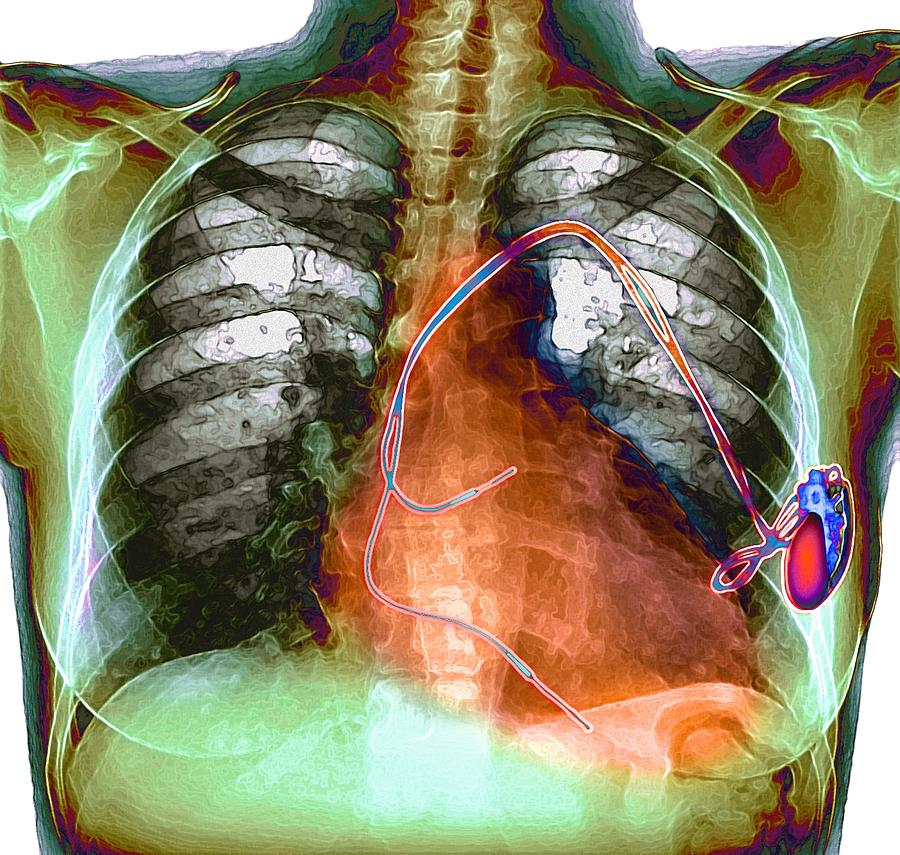 Pump Photograph - Heart Pacemaker, X-ray by Du Cane Medical Imaging Ltd