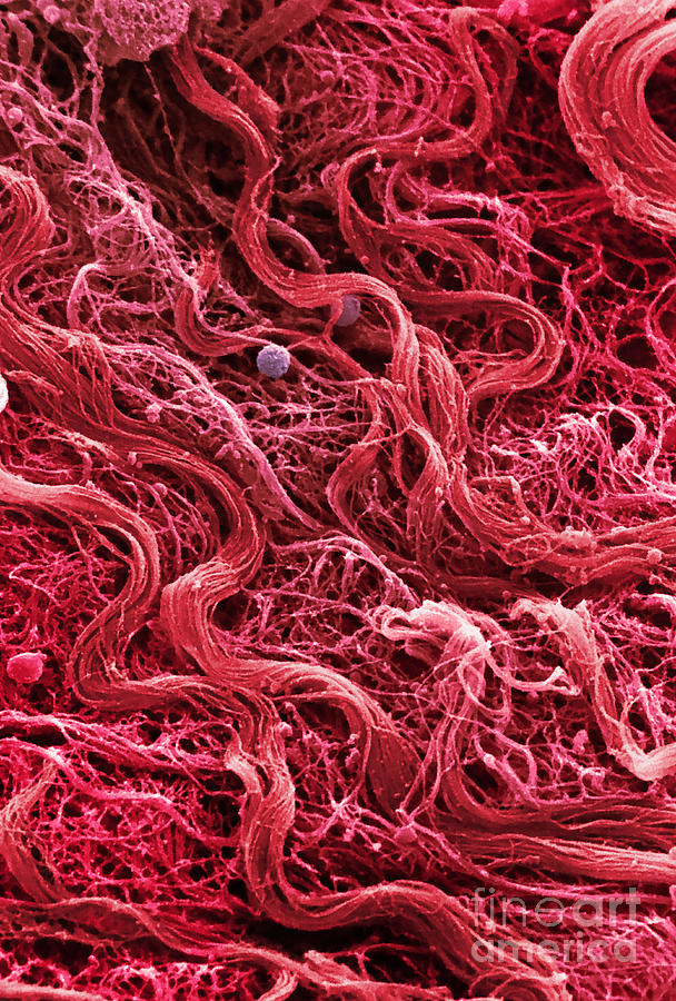 Human Muscle Tissue  Sem Photograph By Ted Kinsman