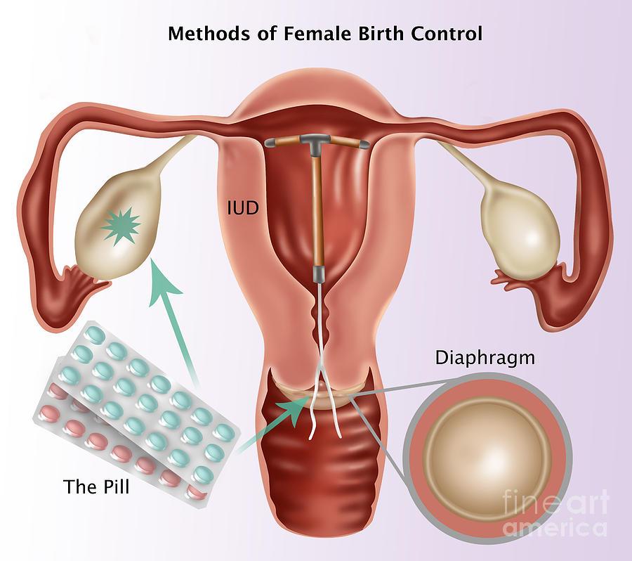 Methods Of Female Birth Control Photograph by Gwen Shockey