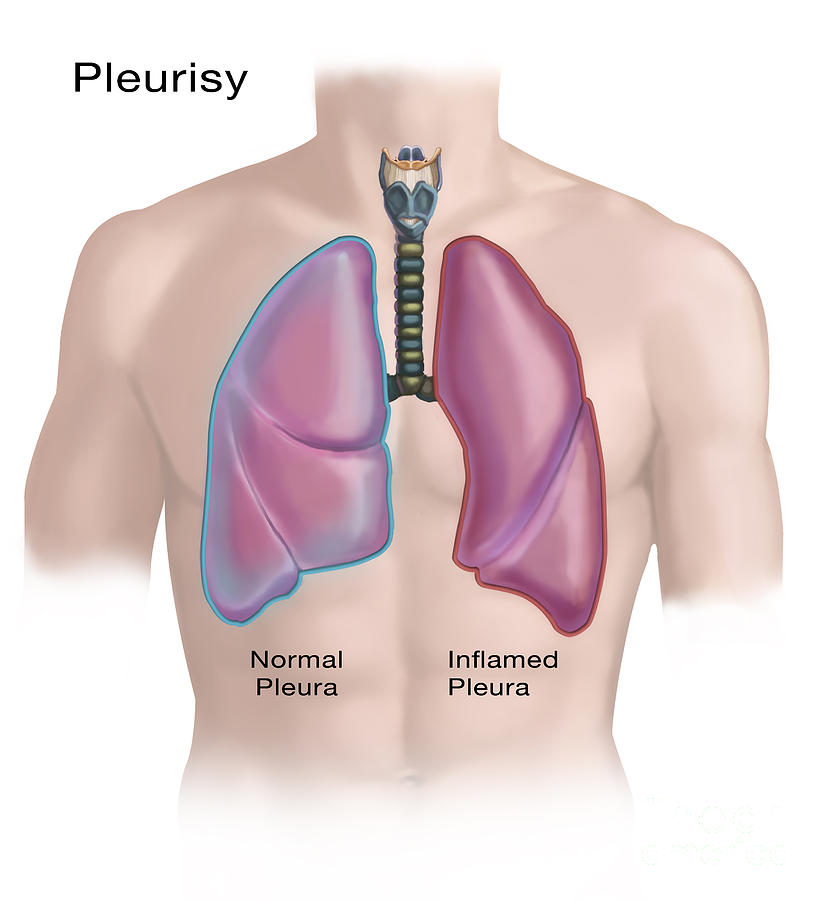 the clinical description of pleurisy Pleurisy is a certain type of chest pain it affects a part of your body you may not have heard of: your pleura it affects a part of your body you may not have heard of: your pleura your lungs are wrapped in a thin layer of tissue called pleura.