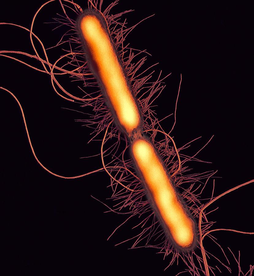 Proteus Vulgaris Photograph - Proteus Vulgaris Bacteria, Sem by Thomas Deerinck, Ncmir