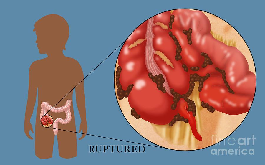 Ruptured Appendix Photograph By Monica Schroeder