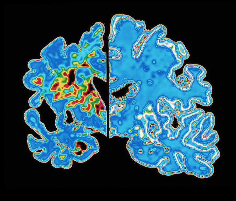 Alzheimer's Disease Photograph - Sectioned Brains: Alzheimers Disease Vs Normal by Pasieka