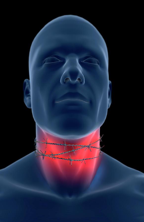 Vertical Digital Art - Sore Throat by MedicalRF.com