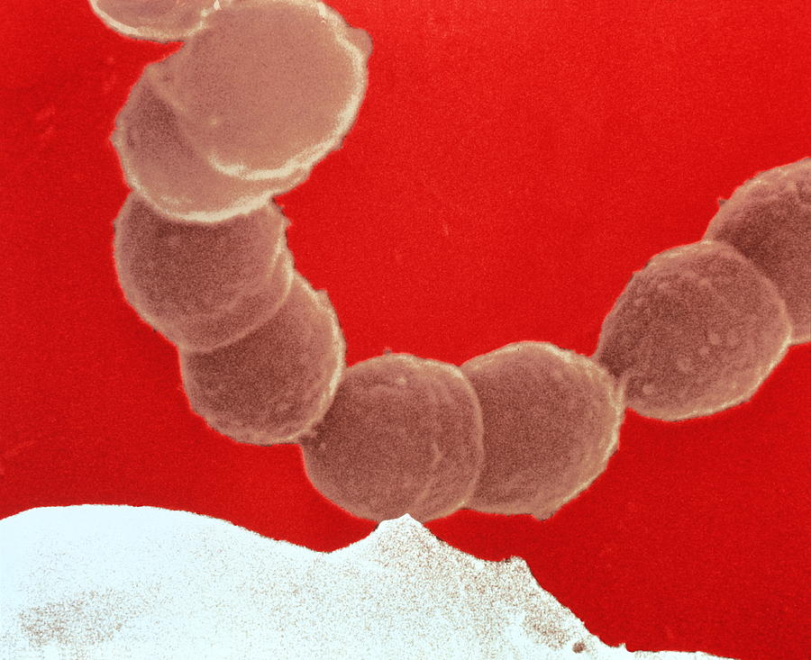 unknown bacteria is streptococcus mutans Susceptibility of porphyromonas gingivalis and streptococcus mutans to antibacterial effect from mammea americana.