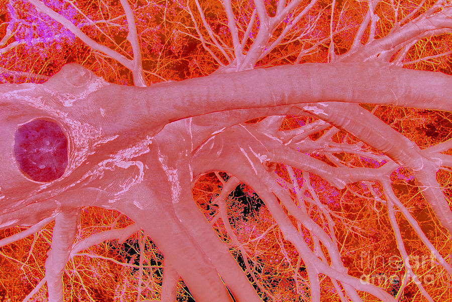 Organic Photograph - Synaptic Meltdown by Scott Evers