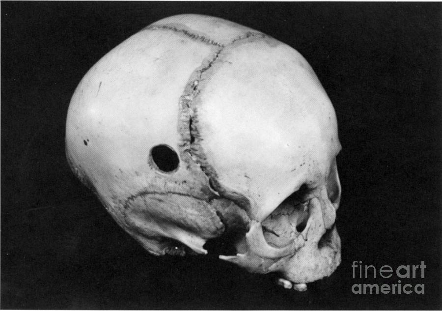 Alternative Photograph - Trepanning: Skull by Granger