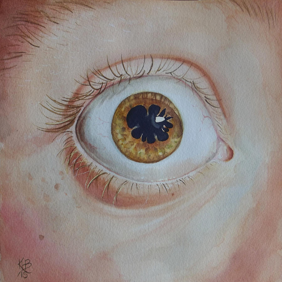 Watercolor Painting - Whats The Matter With Uveitis? by Kirsten Beitler