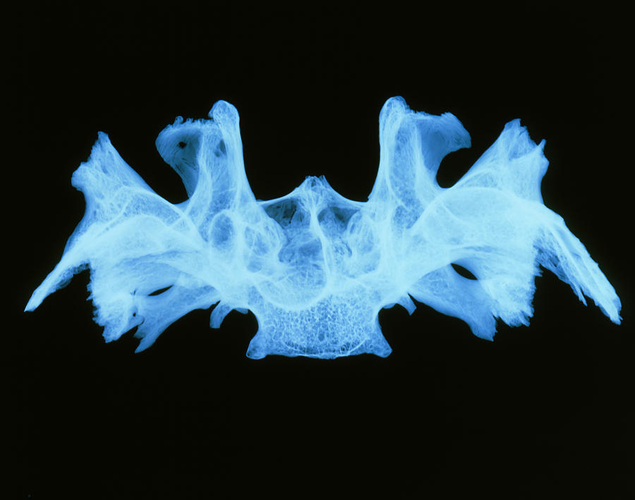 x-ray image of a human sphenoid bone photograph by d. roberts, Human body