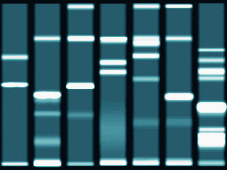 Dna Sequencing Gel, Close-up Photograph by Steven Puetzer