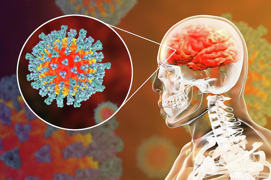 Ca neurologist treating adult rubella encephalitis