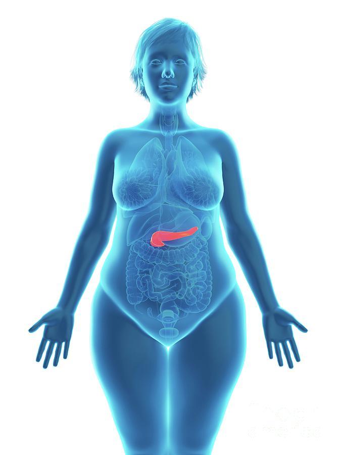 3d Photograph - Illustration Of An Obese Womans Pancreas by Sebastian Kaulitzki/science Photo Library