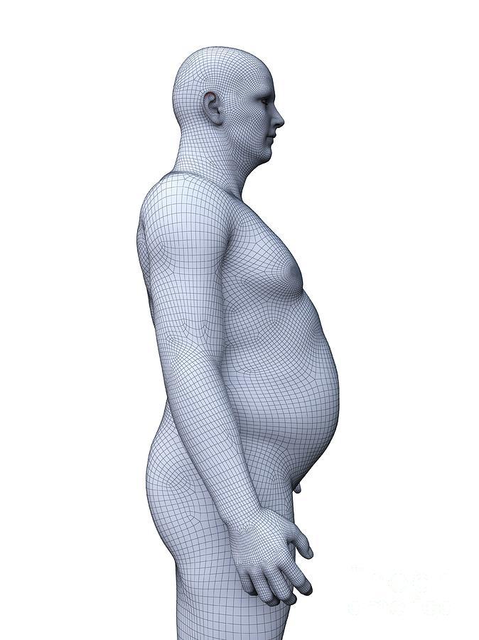 3d Photograph - Obese Man 10 by Sebastian Kaulitzki/science Photo Library