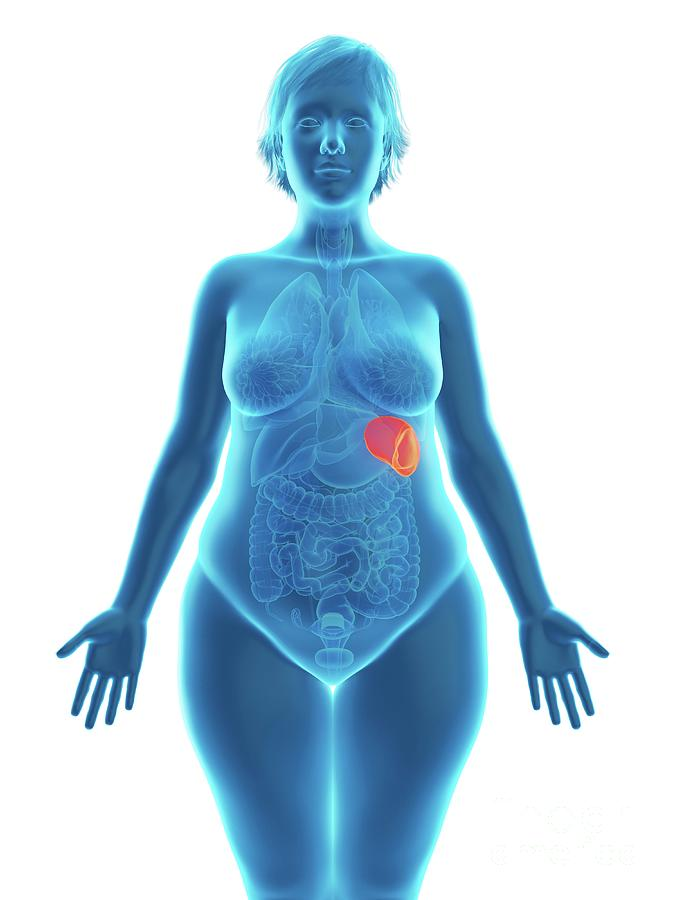 3d Photograph - Illustration Of An Obese Womans Spleen by Sebastian Kaulitzki/science Photo Library