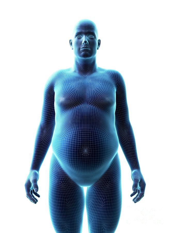 3d Photograph - Obese Man by Sebastian Kaulitzki/science Photo Library