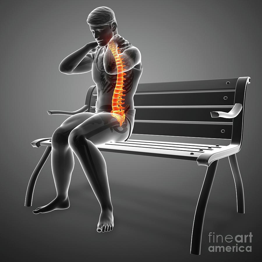 Artwork Photograph - Man With Back Pain 15 by Pixologicstudio/science Photo Library