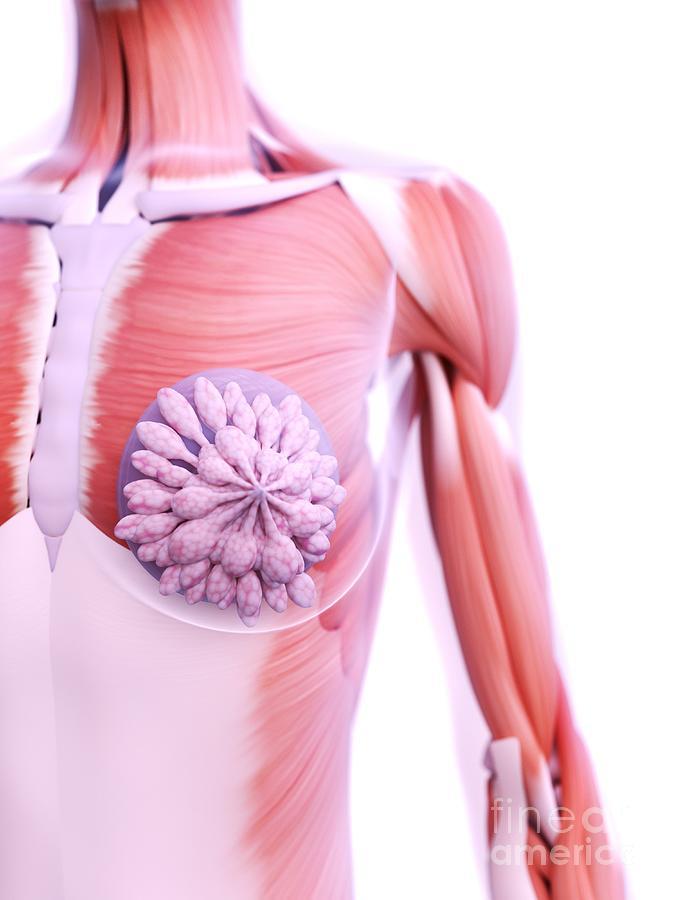 3d Photograph - Breast Implants 22 by Sebastian Kaulitzki/science Photo Library