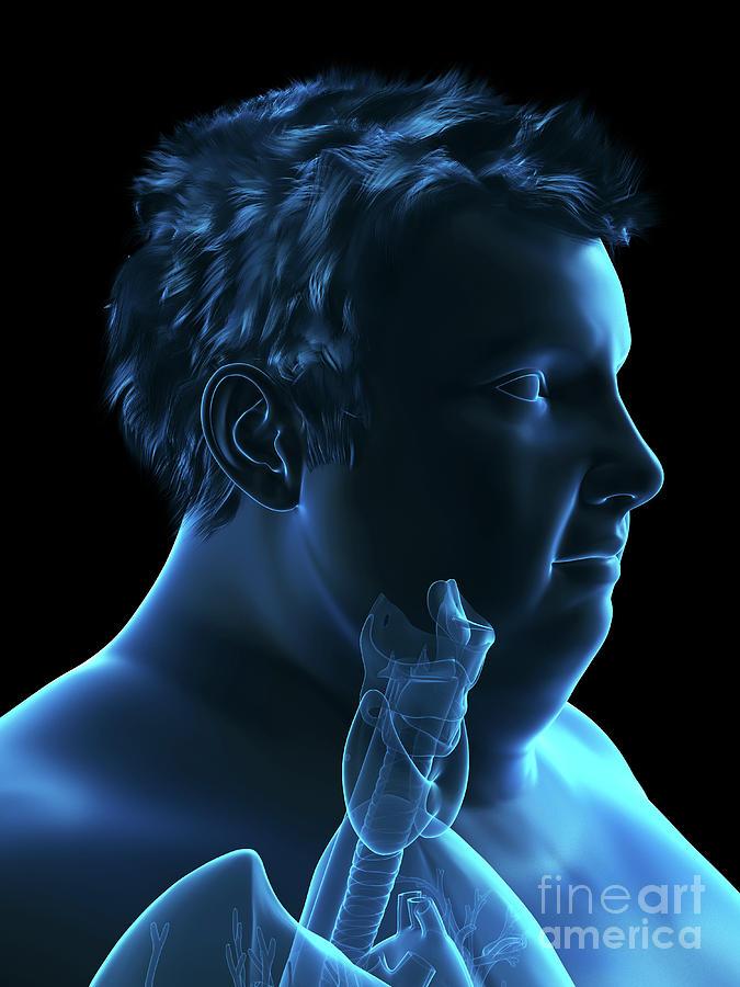 3d Photograph - Illustration Of An Obese Mans Throat Anatomy by Sebastian Kaulitzki/science Photo Library
