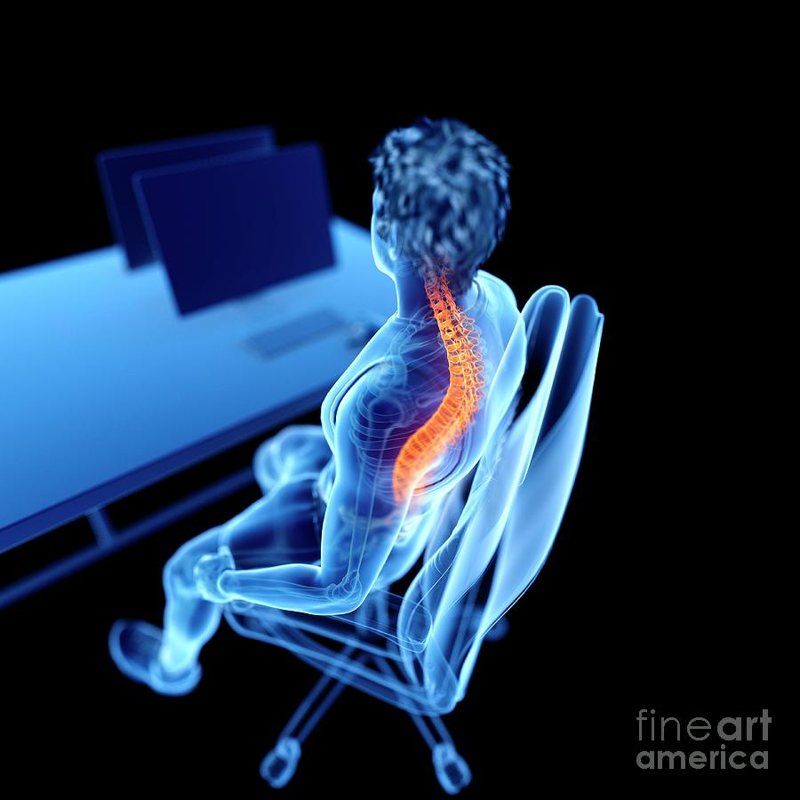 3d Photograph - Office Worker With Back Pain by Sebastian Kaulitzki/science Photo Library