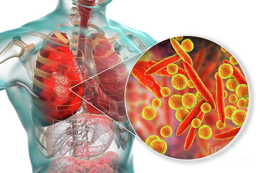 Artwork Photograph - Pneumonia Caused By Moraxella Catarrhalis by Kateryna Kon/science Photo Library