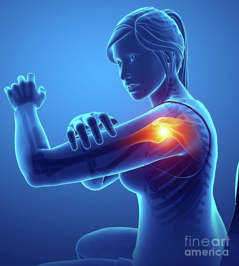 Artwork Photograph - Woman With Shoulder Pain by Pixologicstudio/science Photo Library